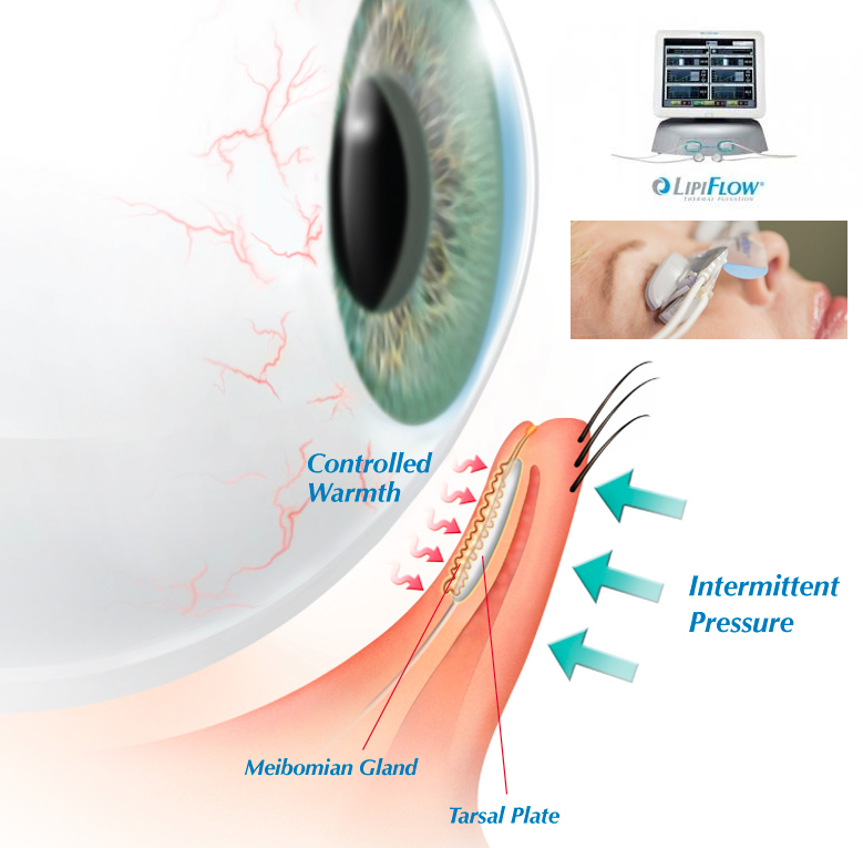 LipiFlow Dry Eye Treatment Delray Beach, Florida